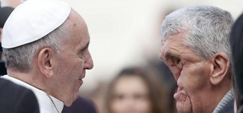 Paus Franciscus en man met ingedeukt gezicht
